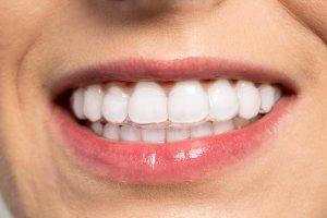 best adult braces uk