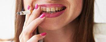 Smokers Teeth