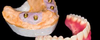 snap-in dentures