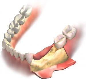 best bone graft material for dental implant