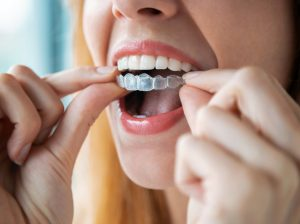 woman inserting Invisalign aligners wondering how long it will take