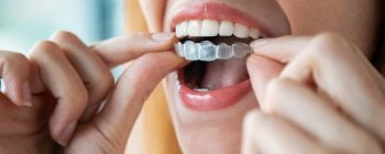 removable braces uk