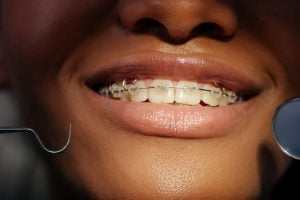 clear ceramic braces for adults