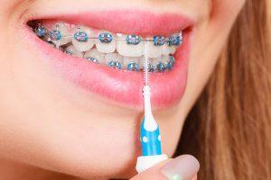 how to clean braces on teeth