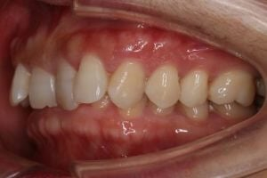 crowded teeth being treated with invisalign