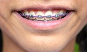 purple braces with power chain