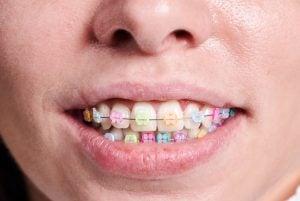 rainbow braces clear brackets