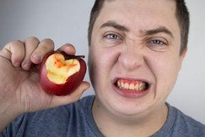 bleeding gums without brushing