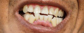 perfect teeth app
