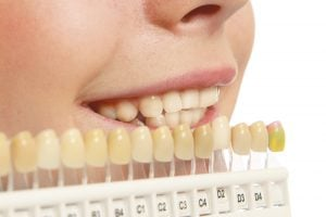 dentists teeth whitening costs