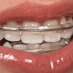 21076Invisalign Reviews: UK Patients Share Their Invisible Braces Reality