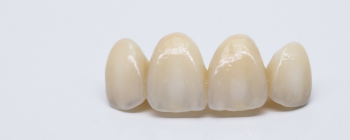 front teeth dental bridge