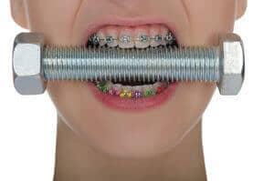 fake teeth braces