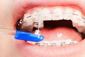 cleaning braces