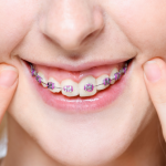 24552What Is Teeth Filing and Dental Contouring? How Much Does It Cost?