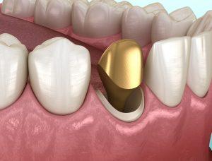 gold teeth dental