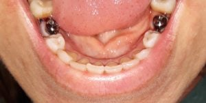 gum swelling after implant placement