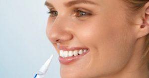 stella white teeth whitening pen