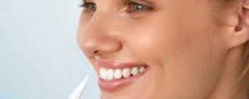 radiance teeth whitening