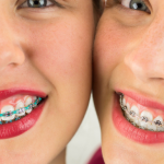 26676Dental Work in Thailand: Reviews from Dental Implant Patients and More