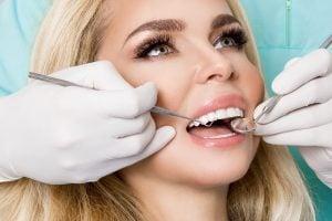 teeth porcelain veneers cost