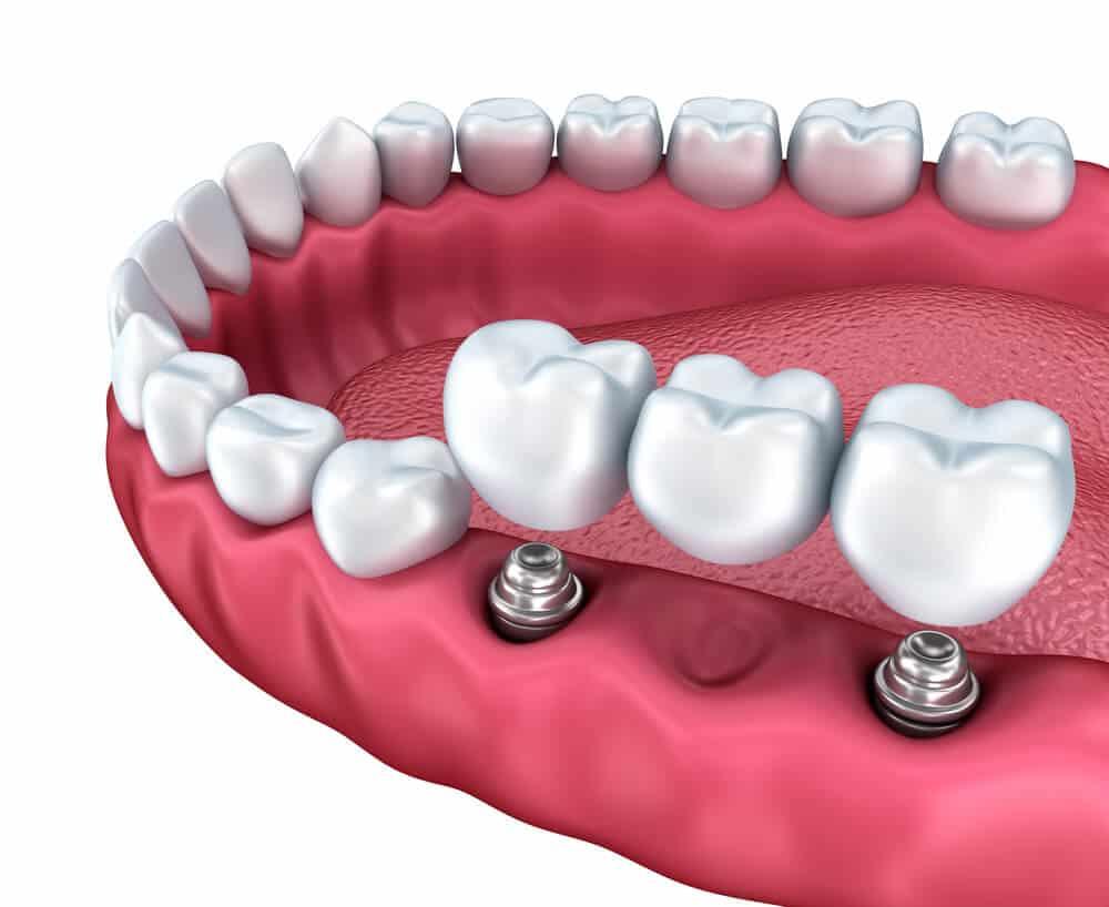 Puente de tres dientes sobre dos implantes dentales