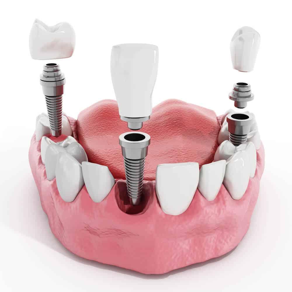 Cántos implantes dentales se pueden poner en un día