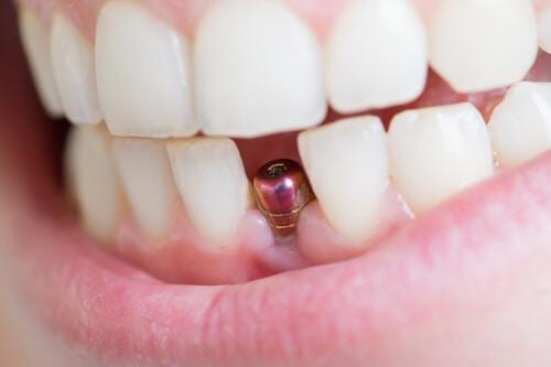 Imagen de pilar para un implante de un diente