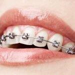 19803Análisis Sanitas Dental: precio, cobertura, opiniones y garantías