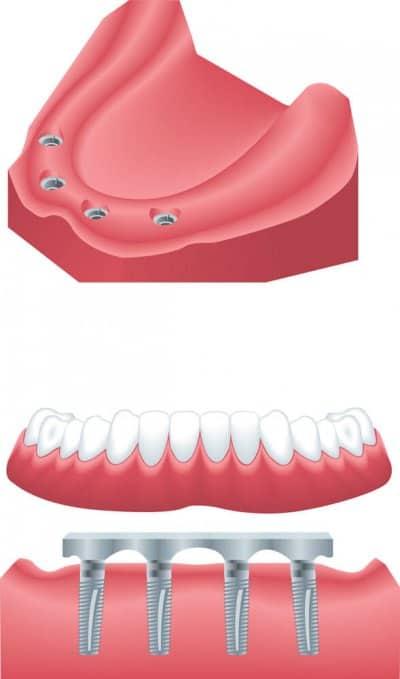 Implantes de boca completa con dentadura removible