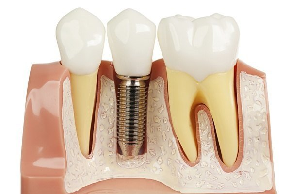 tooth implant diagram