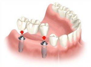 Puente fijo sobre implantes