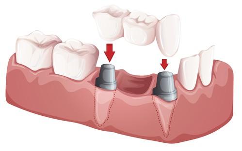 imagen de un puente dental fijo