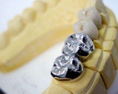 Impresiones y coronas en metal y porcelana