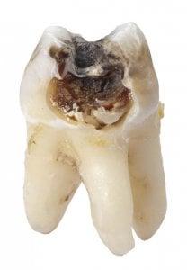 la caries no tratada es una de las causas de la angina de ludwig