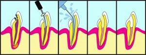 Tratamiento de conducto por infección de muela
