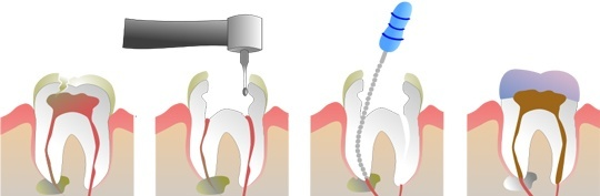 Pasos de un tratamiento endodóntico en una pulpitis