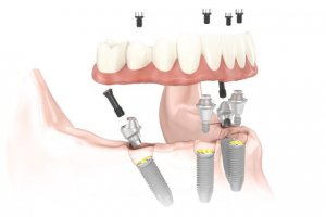 Imagen de implantes dentales All on 4