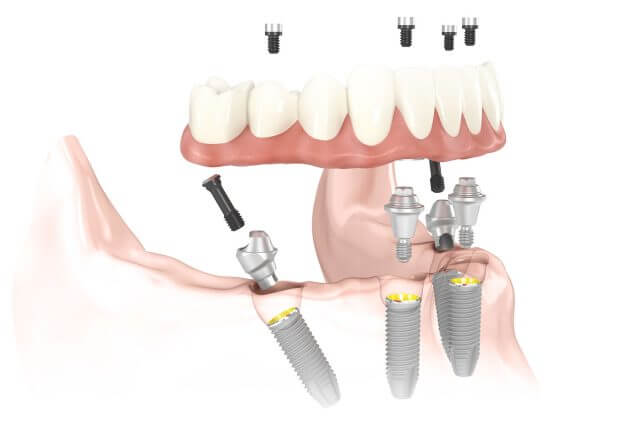Imagen de implantes dentales All-on-4