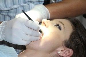 Chequeo antes del tratamiento blanqueador dental