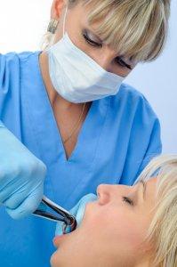 Forcep dental