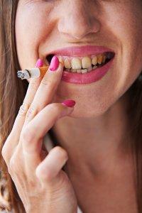 Paciente con dientes amarillos por fumar