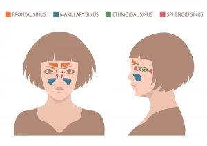 diagrama de seno maxilar