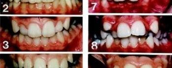 Maloclusion, cuando tus dientes están ubicados de forma incorrecta en tus maxilares