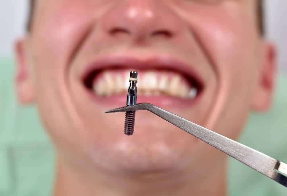 Implantes dentales baratos