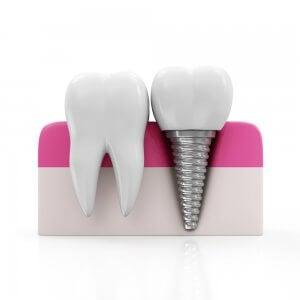 Implantes dentales - cirugía maxilofacial