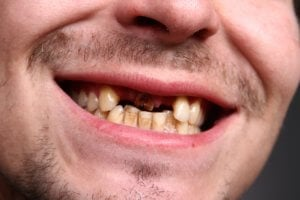 Imagen de paciente con ausencia de dientes anteriores