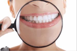 La limpieza bucodental es el mejor antídoto contra el sangrado de encías