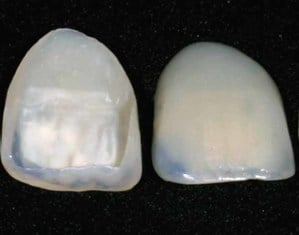 tipos de carilla dental