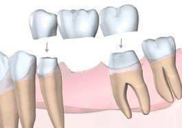 formas de rellenar un diente removido